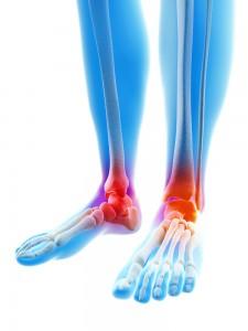 Deformierende arthritis der fußgelenker, wenn...