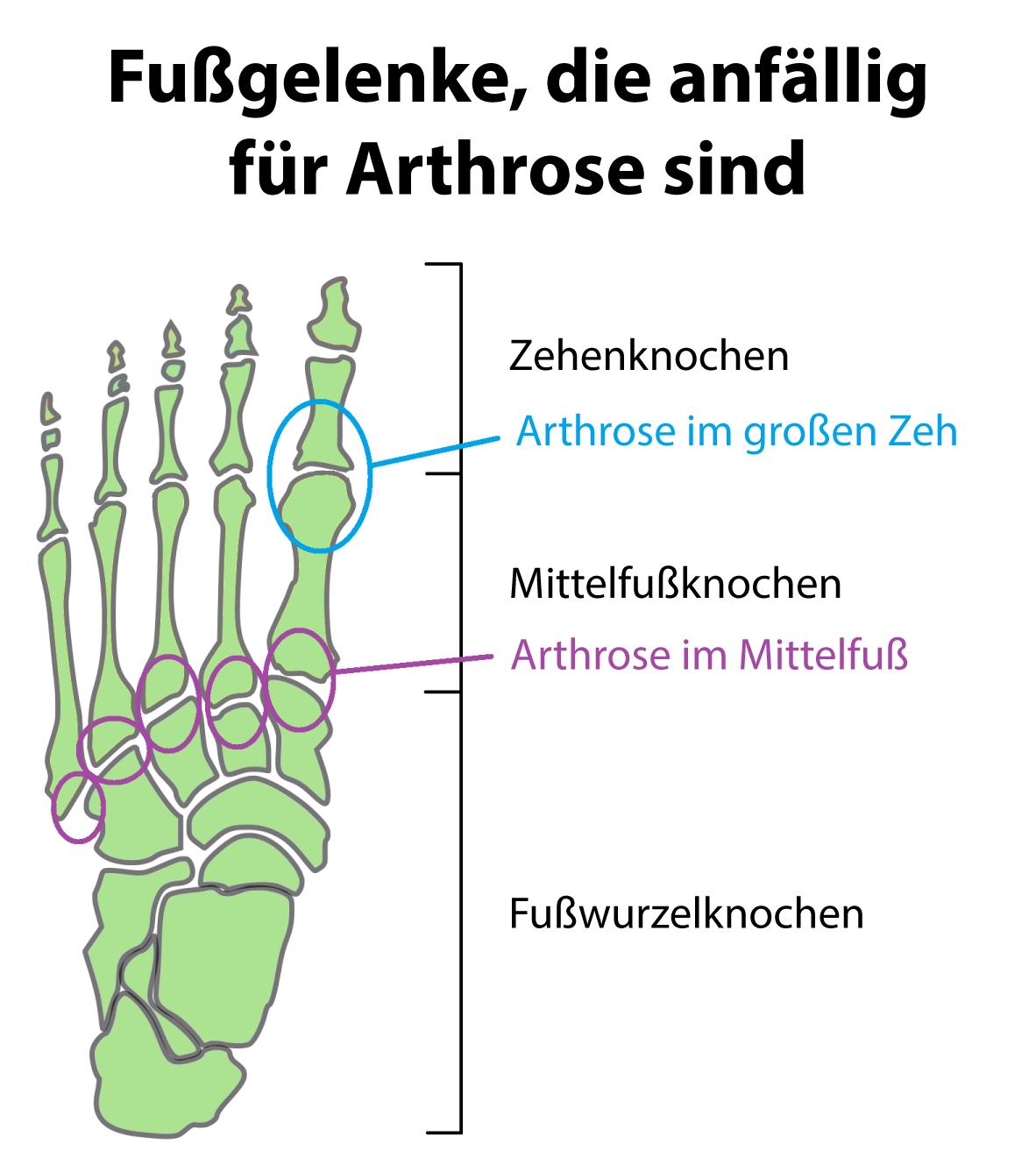 Arthrose Symptome und Ursachen