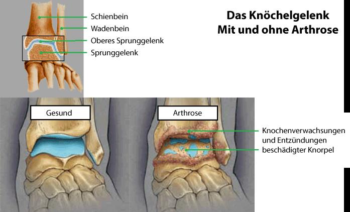 Arthrose in den Knöcheln, Füßen und Zehen • Bewegen ohne Schmerzen