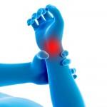 Schmerzen in den Händgelenke durch Arthrose