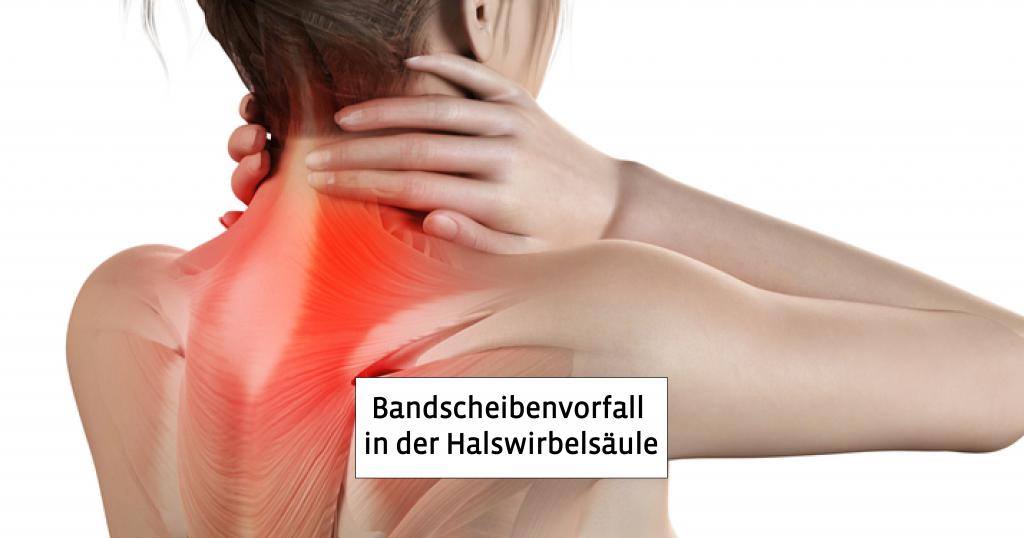 Bandscheibenvorfall in der Halswirbelsäule | Symptome | Behandlung