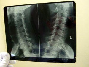 Diagnose Bandscheibenvorfall in der Halswirbelsäule