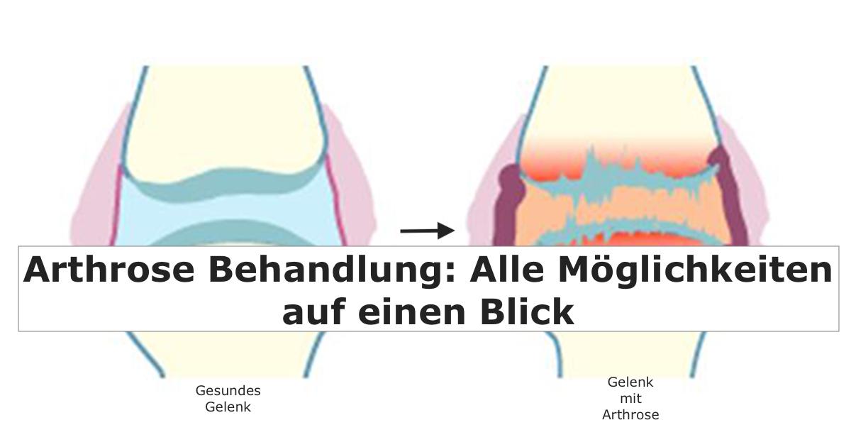 Mit Stammzellen gegen Arthrose
