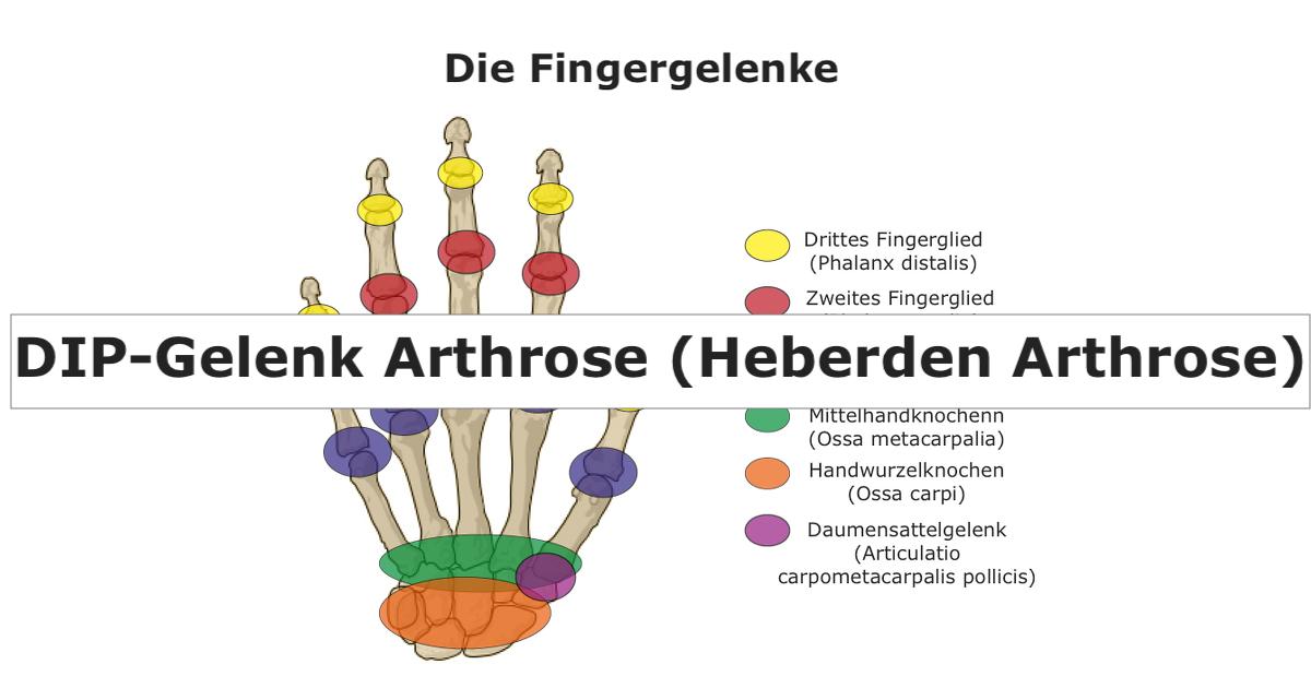 Ziemlich Handknochengelenkanatomie Bilder - Anatomie Ideen - finotti ...