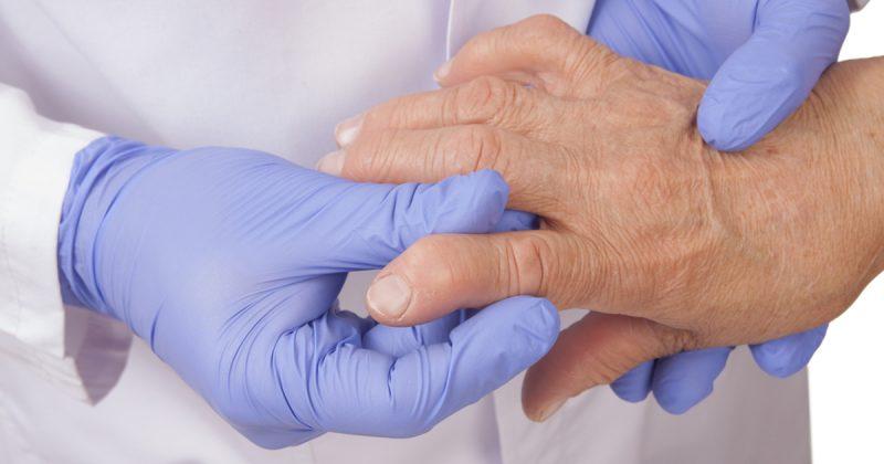Rheuma Knoten Hand