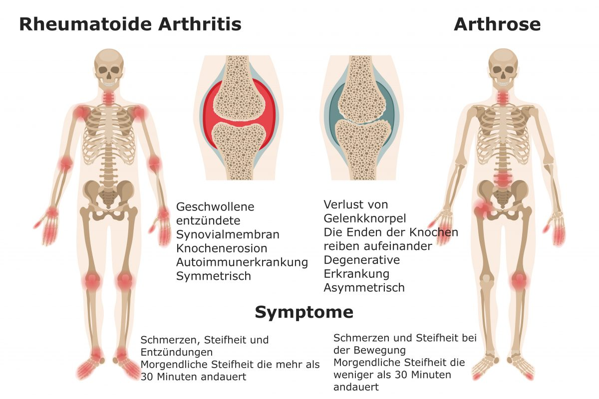 Gelenkschmerzen lindern: Diese Methoden helfen