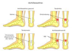 Achillessehne-entzündung-degeneration-riss-abbildung
