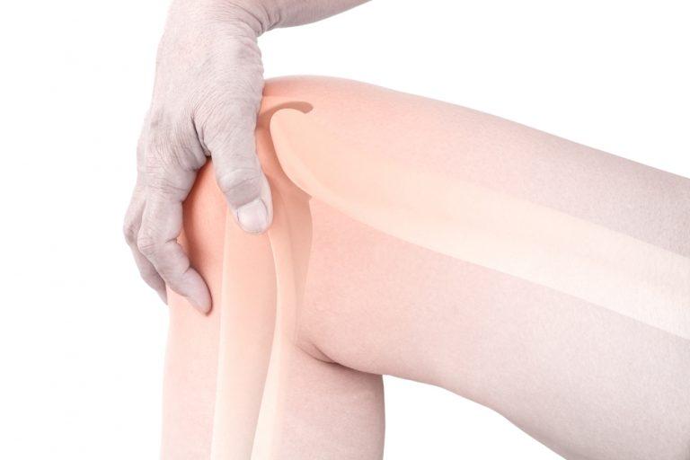 arthrose-nicht-nur-durch-verschleiss
