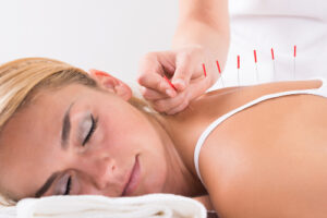 akupunktur-fibromyalgie