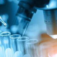 Englische Forschung über die Ursache und Behandlung von Fibromyalgie